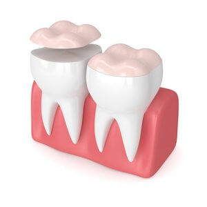 3d render of dental onlay