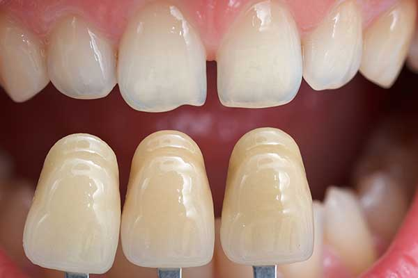 Cosmetic Bonding Process