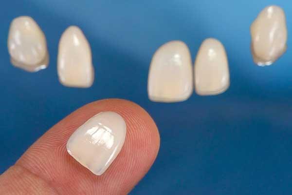 Dental Veneers Ready To Be Applied