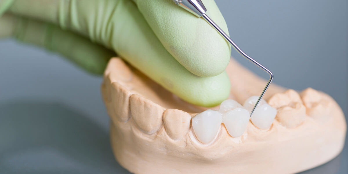 dentist working on a dental bridge