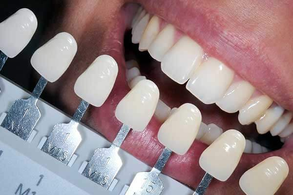 Composite Fillings In Various Shades Compared To Teeth
