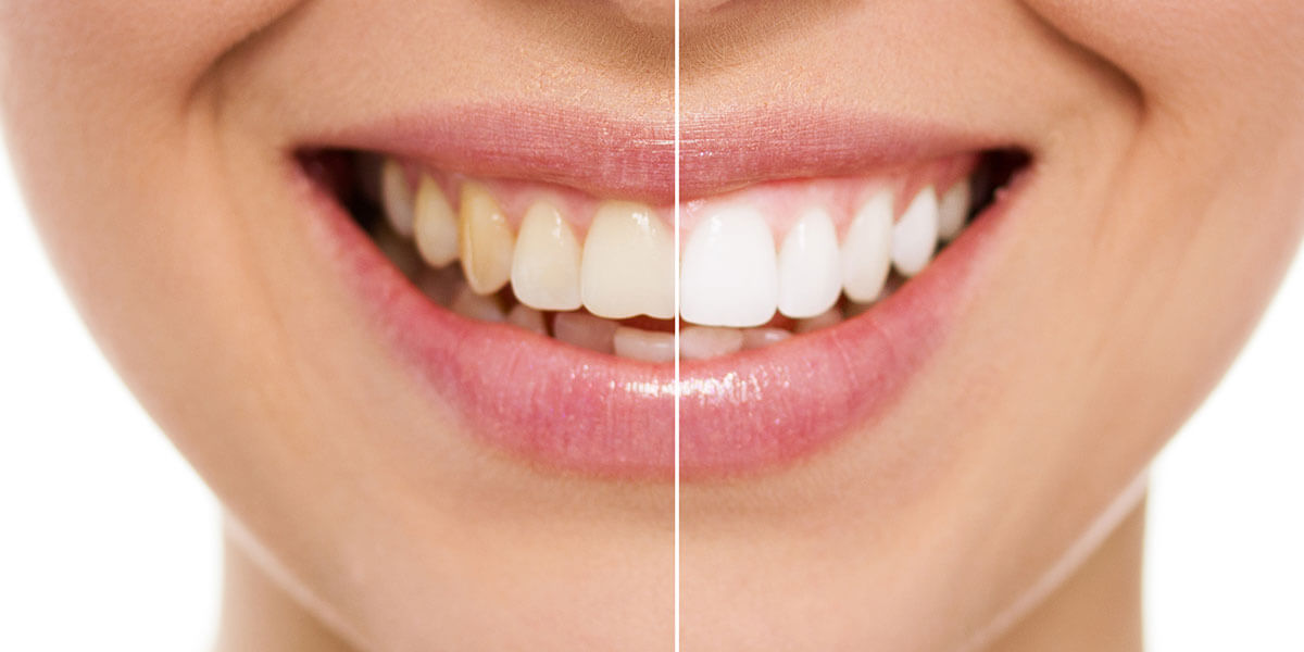 Woman's smile before and after whitening.